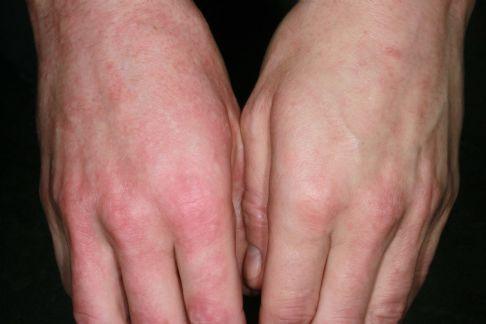 Symptomer - Videncenter For Allergi