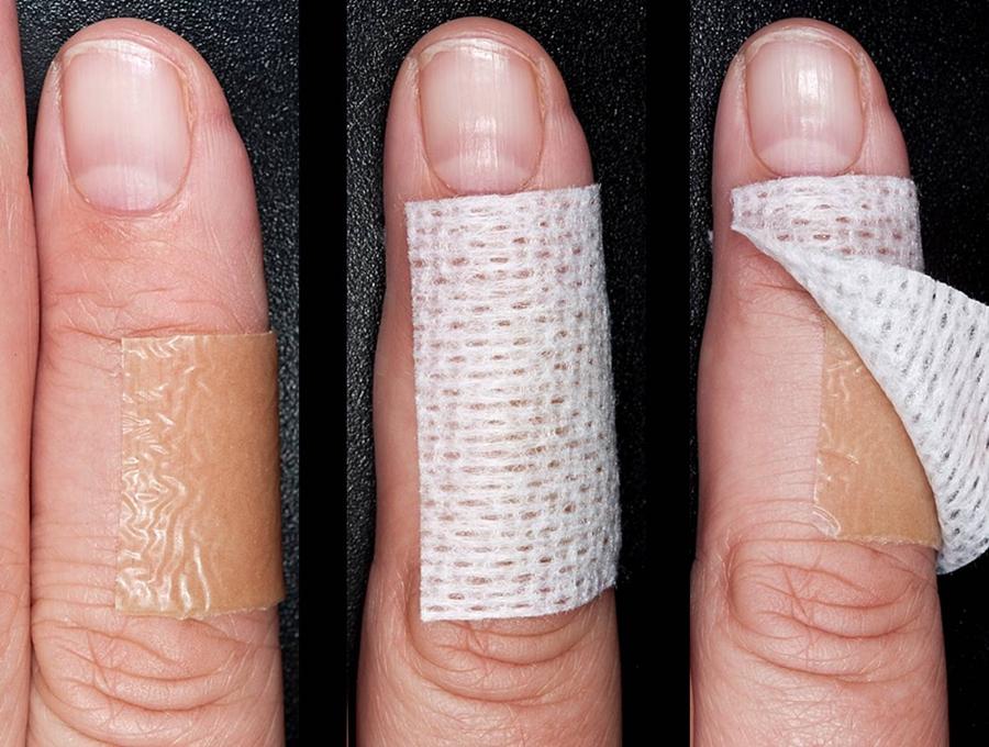 Revner (fissurer) i huden - Videncenter For Allergi
