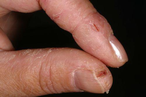 død hud på fingrene