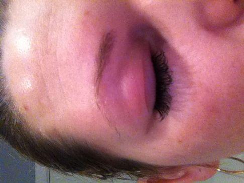 allergisk reaktion omkring øjnene