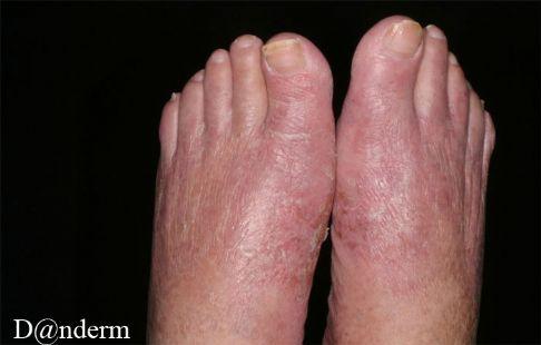 eksem på fødder
