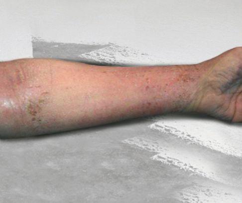 epoxy allergi symptomer